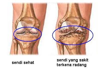 Cara menghilangkan sakit pada lutut